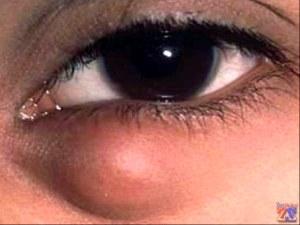 Халязион: причины возникновения и лечение.