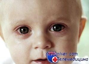 Стафилококк у малышей – как победить заболевание?